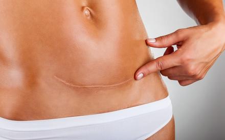 Cicatriz de cesárea