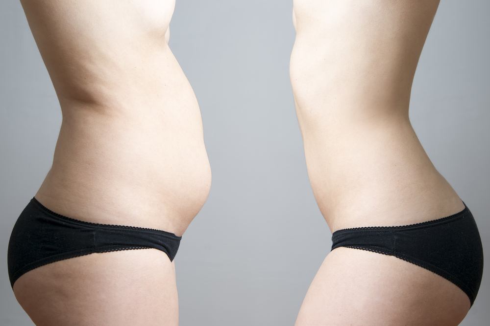 Fisioterapia para tratar la diástasis abdominal tras el parto