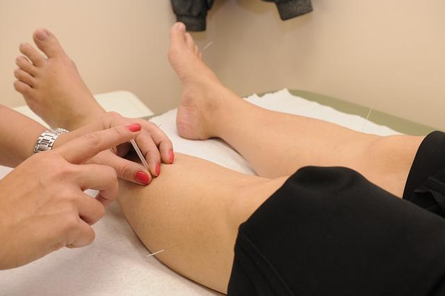 Punción seca, tratamiento de fisioterapia